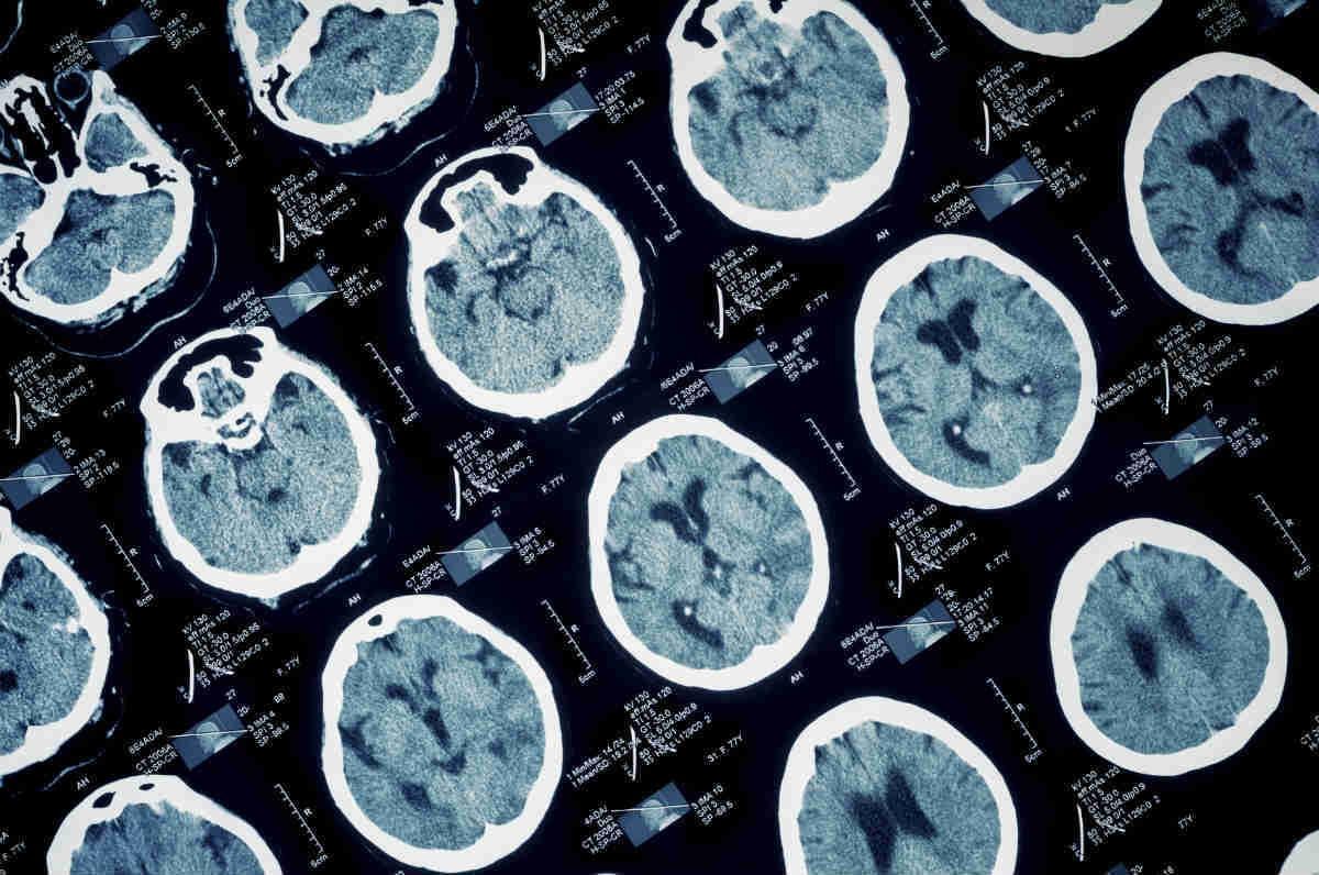 brain damage in scans
