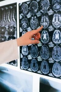 brain injury scan attorney lawsuit